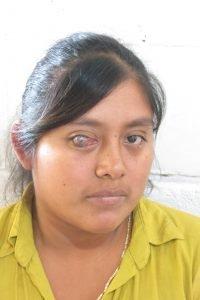 Susana in February 2017